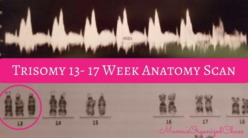 Trisomy 13 17 week anatomy scan chromosomes explained